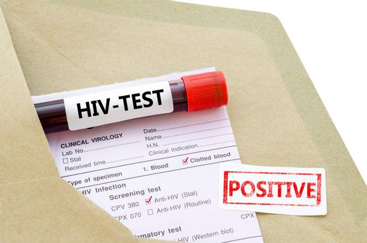 Blood sample with HIV test positive.