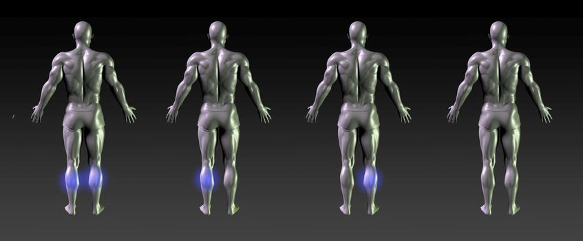 Calf Recovery or Rehabilitation with Blue Glow