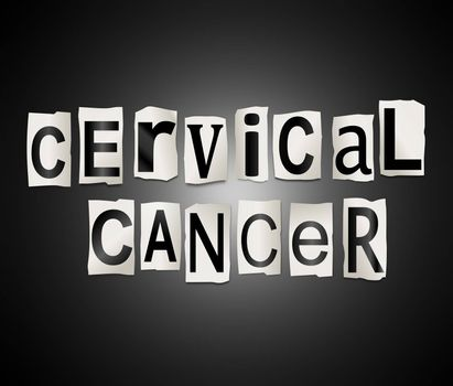 Illustration depicting a set of cut out printed letters arranged to form the words cervical cancer.