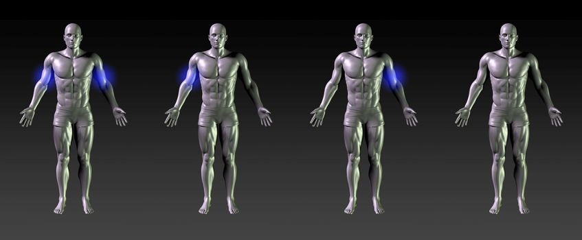 Bicep Recovery or Rehabilitation with Blue Glow