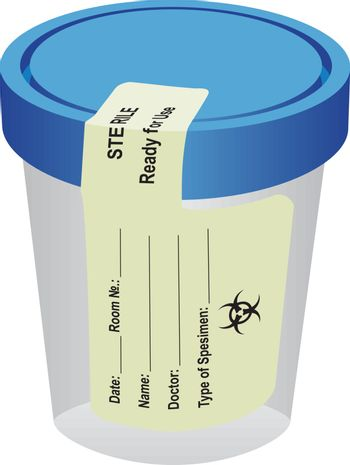 Sterile container with a label
