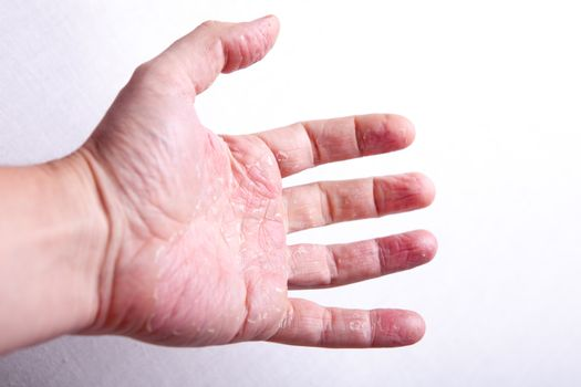 The problem with many people - eczema on hand. Isolated background.