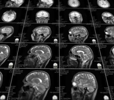 Magnetic resonance imaging of the brain with no visible abnormalities.