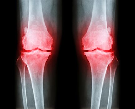 Osteoarthritis both knee .  film x-ray AP ( anterior - posterior ) of knee show narrow joint space , osteophyte ( spur ) , subcondral sclerosis