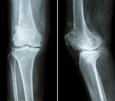 Osteoarthritis knee .  film x-ray knee ( anterior - posterior and lateral view )  show narrow joint space , osteophyte ( spur ) , subcondral sclerosis due to degenerative change