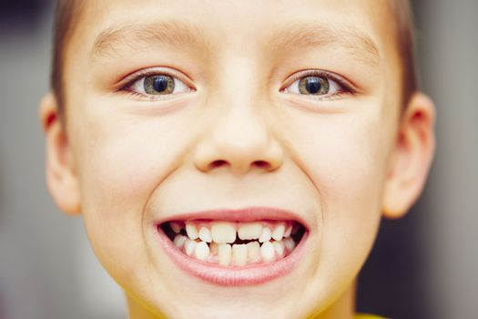 First and second teeth of the little boy