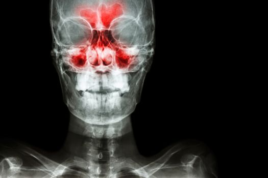 Sinusitis. film x-ray skull AP ( anterior - posterior ) show infection and inflammation at frontal sinus , ethmoid sinus , maxillary sinus and blank area at right side
