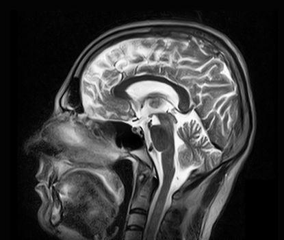 Magnetic resonance imaging of the brain
