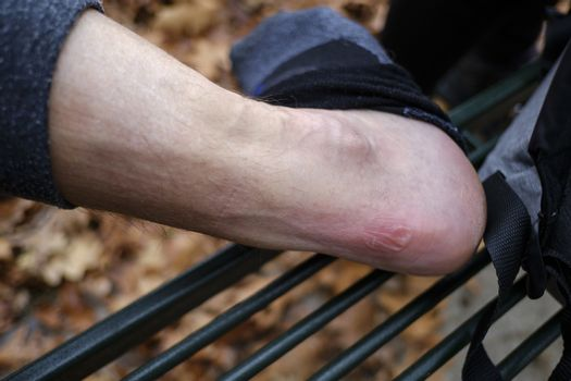 large blister on the heel