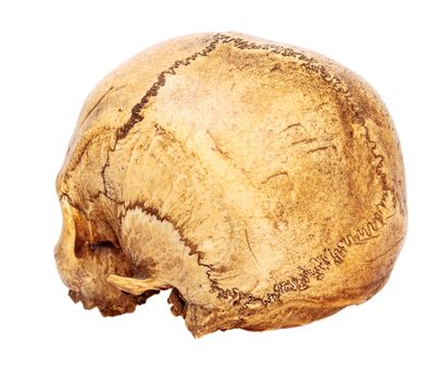 Old Human Scull