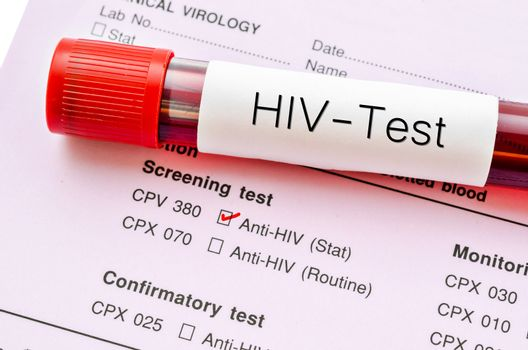 HIV test, HIV infection screening test form.