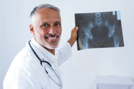 Male doctor holding x-ray
