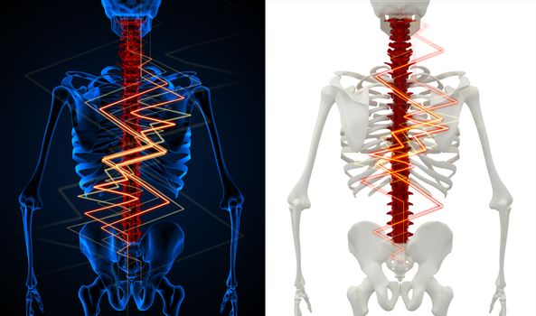 3d rendering skeleton of the man with the backache