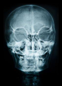 X ray of skull.