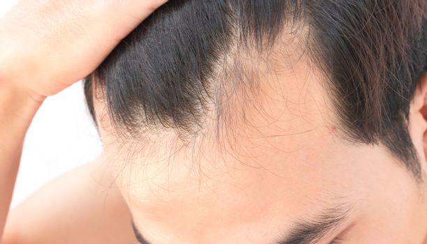 Young man worry hair loss problem for health care shampoo and be