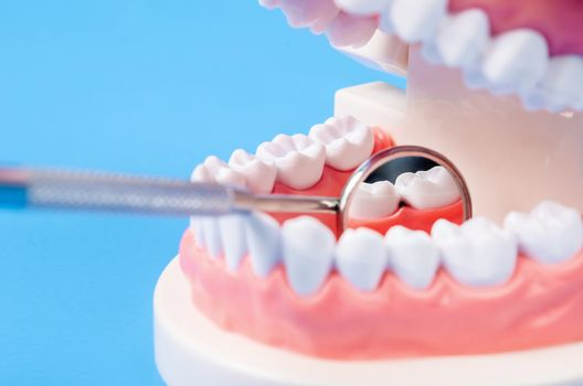 Tooth dental caries on denture with equipment.