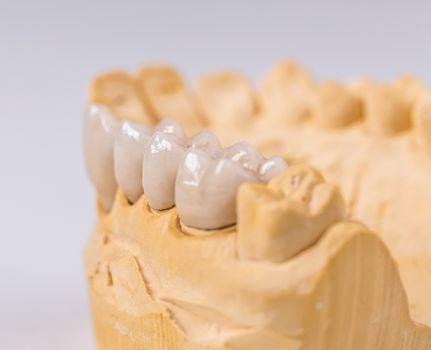 Denture made of ceramics
