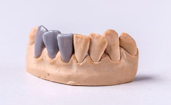 Wax dental prosthesis