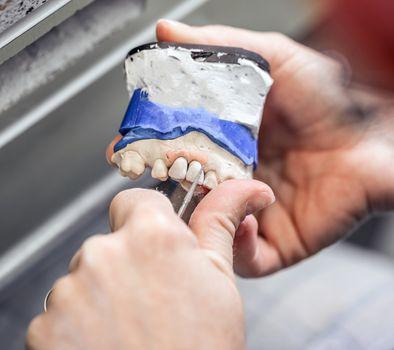 Woman hand make denture