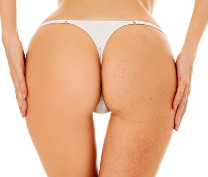 Closeup shot of female buttocks. Before - after concept. Isolated on white background
