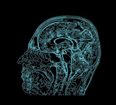Topographic map MRI of the human brain. Vector illustration