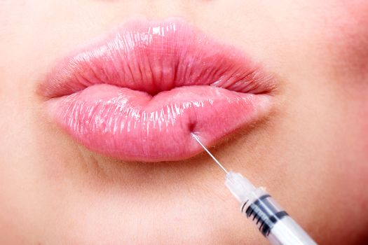 Closeup shot of beautiful young woman receiving filler injection in lips, beauty treatment concept