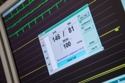 A close-up of a monitor with blood pressure and heart rate displayed.