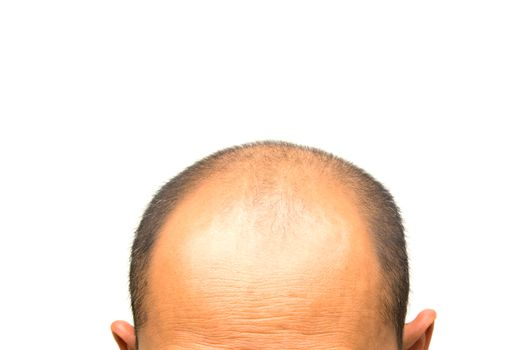 Head of man lose one's hair, glabrous on his head for elderly ma