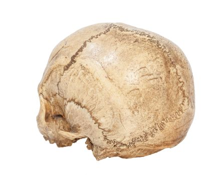 Back of Human Scull