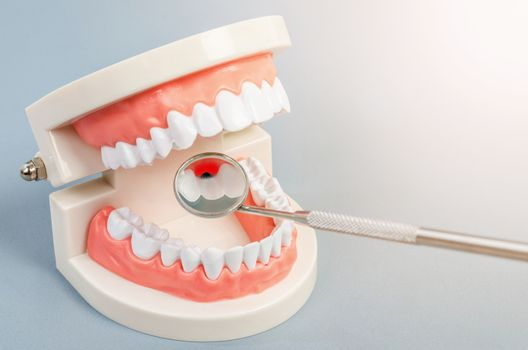 Tooth dental caries on denture with equipment dental.