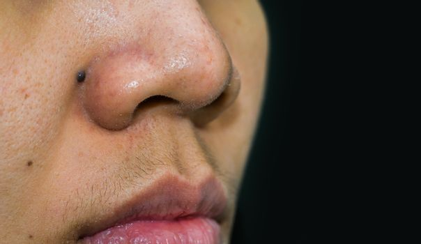Black mole behind nose need CO2 Laser to removal. Blackheads acne on Asian woman nose. Comedones and large pores skin need AHA, BHA or benzoyl peroxide. Excess male hormone cause of female mustache.