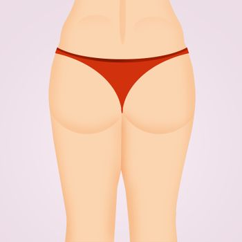 firm buttocks before and after