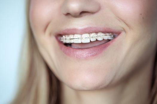 Braces, treatment for a crooked teeth