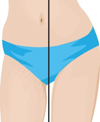 Hair removal results. Before and after. vector illustration
