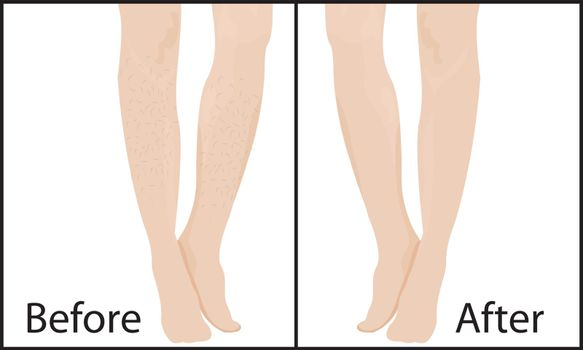 Before and after Hair removal methods and results vector illustration