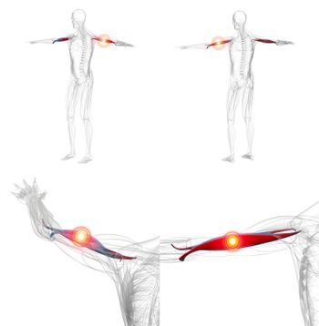 3d rendering illustration of red and pain biceps muscle x-ray co