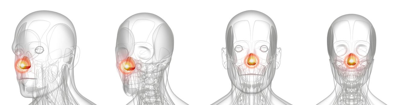 3d rendering medical illustration of pain dilator naris