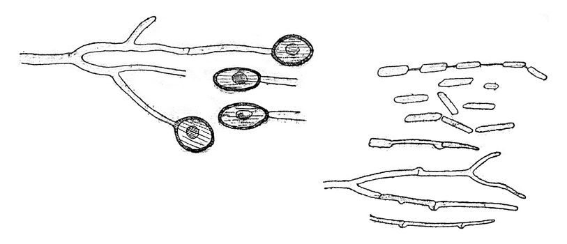 Conidia form, Chlamydospores and germination, vintage engraved illustration.