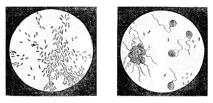 Fig 2. A bacterium (Bacterium termo), Fig 3. monads (Monas lens) Uvelles (Uvella Socialis), magnified 500 times, vintage engraved illustration. Magasin Pittoresque 1873.