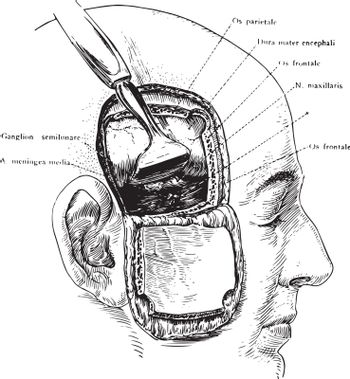 Incision of the Head Showing Gasserian Ganglion, vintage illustr