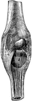 Superficial Ligaments of the Carpus, vintage illustration.