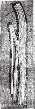 Nerve Trunk Dividing, vintage illustration.