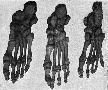 Comparative table of the skeleton of the foot of a Japanese, a European and an Australian, vintage engraved illustration. From the Universe and Humanity, 1910.