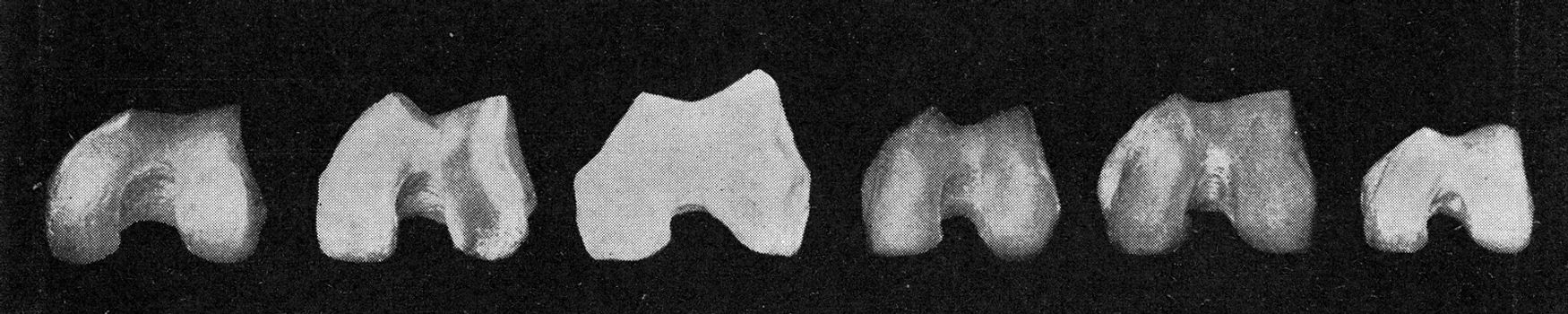 Comparative table of the surface of the knee joint of the femur of a European, an Australian, the Neanderthal man, an Australian, an African negro and a negro dwarf, vintage engraved illustration. From the Universe and Humanity, 1910.