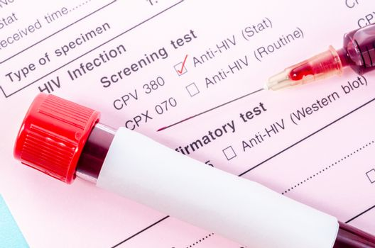 Sample blood collection tube with HIV test.
