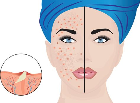 Acne pustules on a woman face and a treatment result