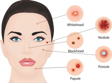 Acne types vector illustration. Cosmetology