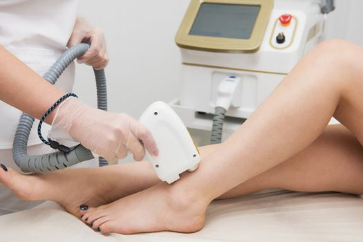 Laser epilation of legs, hair removal cosmetology procedure. Health and beauty concept.