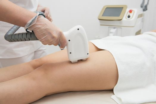 Laser epilation of legs