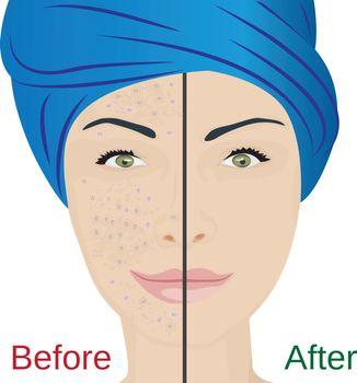 Acne pustules on a woman face
